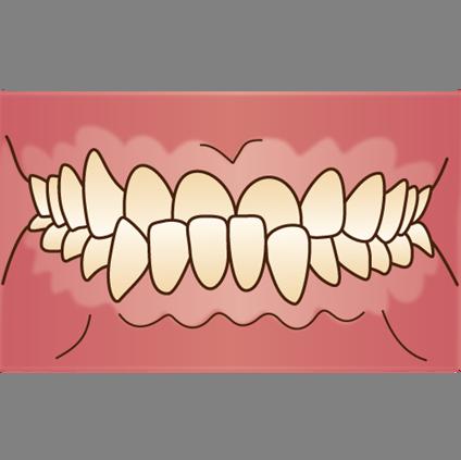 下顎前突(下の歯の突出)
