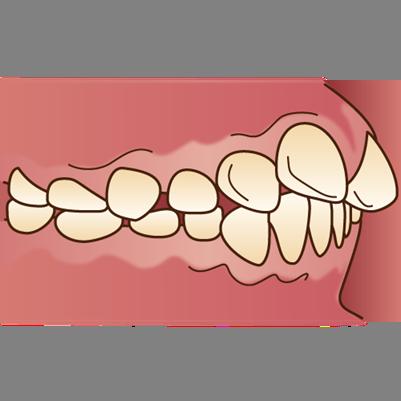 上顎前突(上の歯の突出)